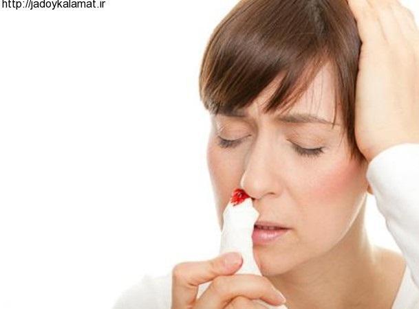 چگونه خونریزی بینی را متوقف کنیم - سلامت