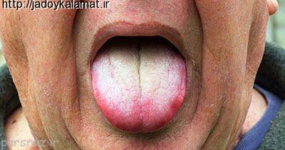 روش درمان سوختگی زبان با خوردن غذای داغ