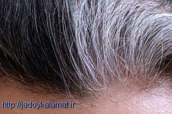 علت سفیدی مو - سلامت نیوز