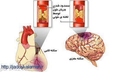 روشی برای مقابله با سکته قلبی